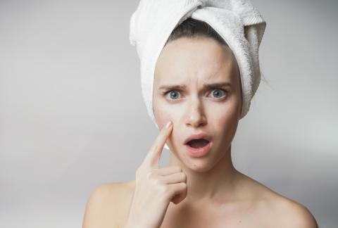 square of What is the Best Ways to Stop Acne