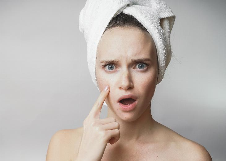 thumbnail of What is the Best Ways to Stop Acne