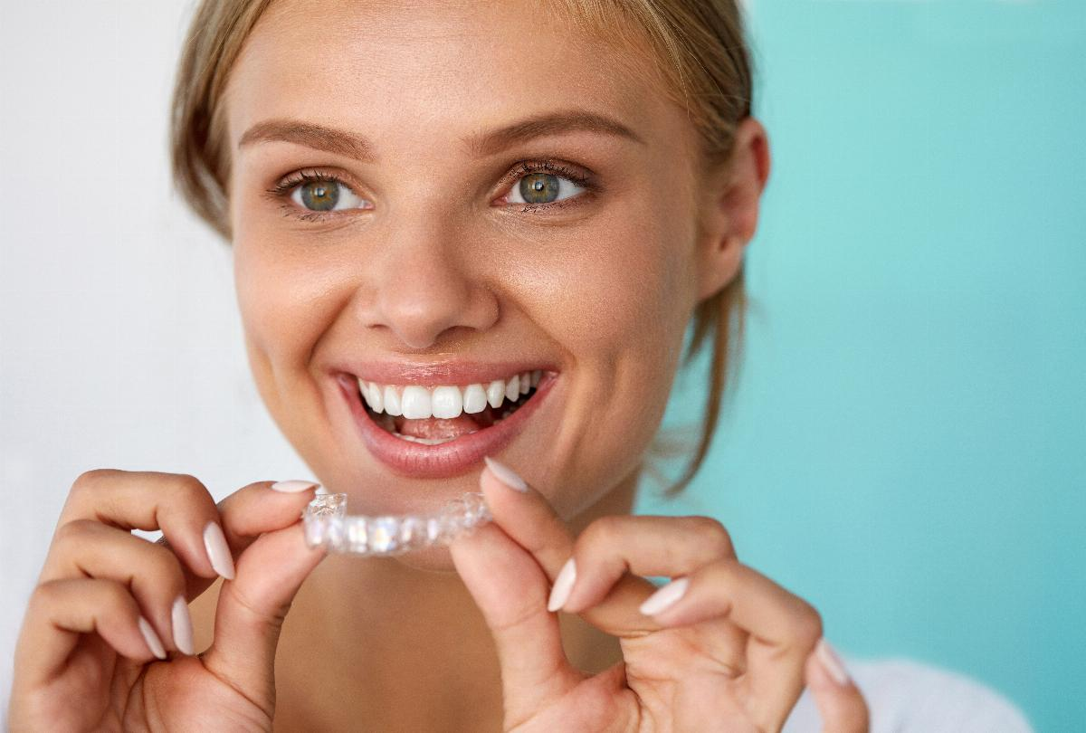 banner of Professional vs. DIY Teeth Whitening: Which to Choose