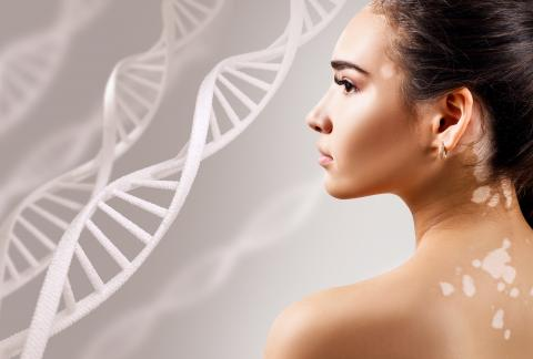 square of How Do Genetics Affect Your Autoimmune System?