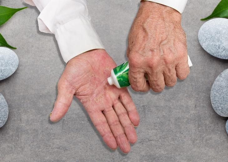 thumbnail of There Are Various Treatments For Atopic Dermatitis