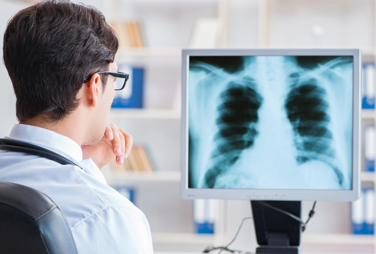 banner of Non-Small-Cell Lung Carcinoma (NSCLC) is The Most Common Form of Lung Cancer