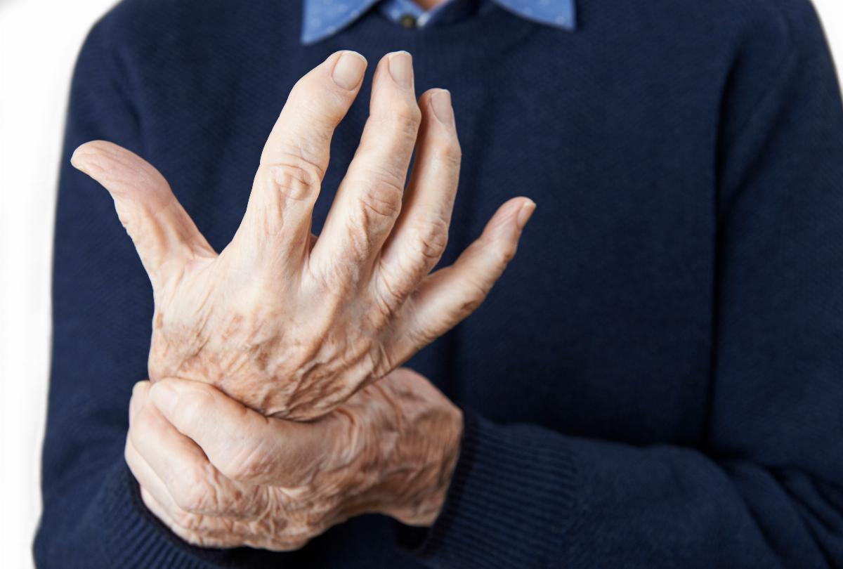 banner of Managing and Treating Arthritis Effectively