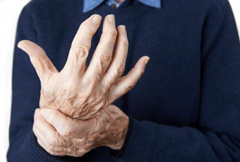 square of Managing and Treating Arthritis Effectively